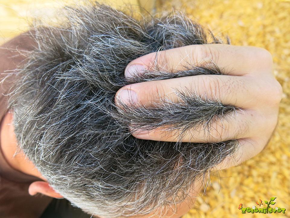 kopriva lasje